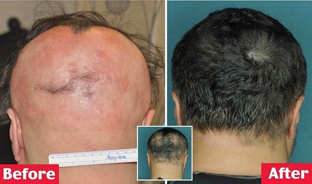 صورة للرأس قبل وبعد العلاج