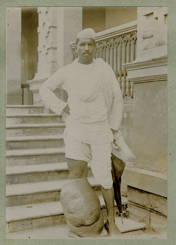 Man With Abnormal Growth in Leg - 1890's