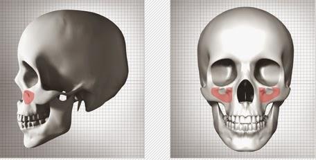 Metode koreksi tulang pipi dengan penambahan implan di Wonjin