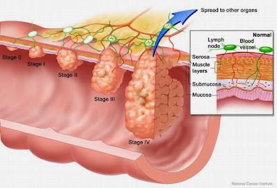 Obat Kanker Usus Besar Herbal