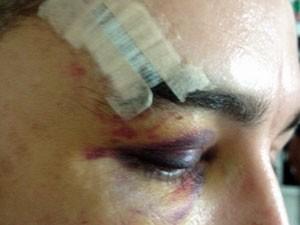 Na madrugada do dia 16 de Dezembro, na Zona Oeste de São Paulo, um rapaz foi agredido com golpes de barra de ferro, socos e chutes (Foto: Lívia Machado)