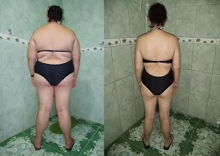 suziane burguez proença cirurgia bariatrica gastroplastia antes e depois