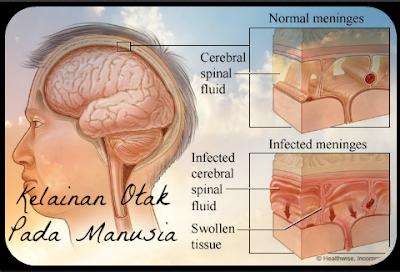 6 Kelainan Otak Pada Manusia