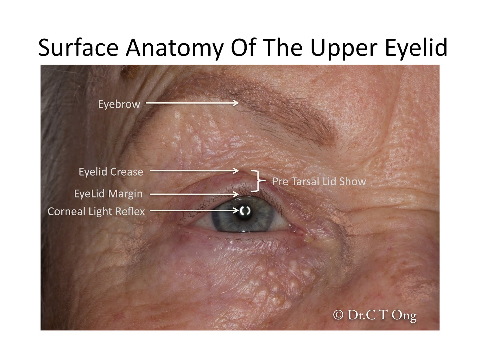 Blepharoptosis (Drooping Eyelid) 101: All your questions answered ...