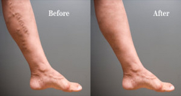 You Have Problems With Varicose Veins? These 2 Steps Will Help You Resolve Your Problem!