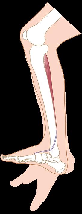 litteken knip bevalling