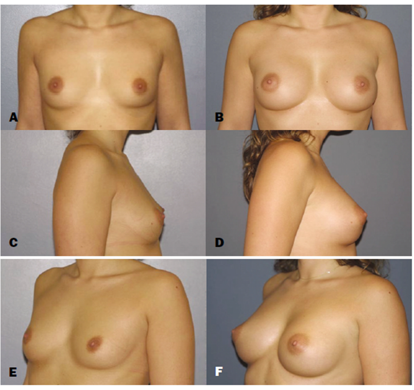 Evaluation of the Rupture of Silicone Breast Implants