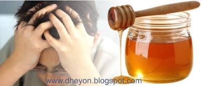 sakit kepala dan madu