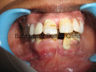 Immediate Dental Implant placement in a periodontaly weakened tooth region