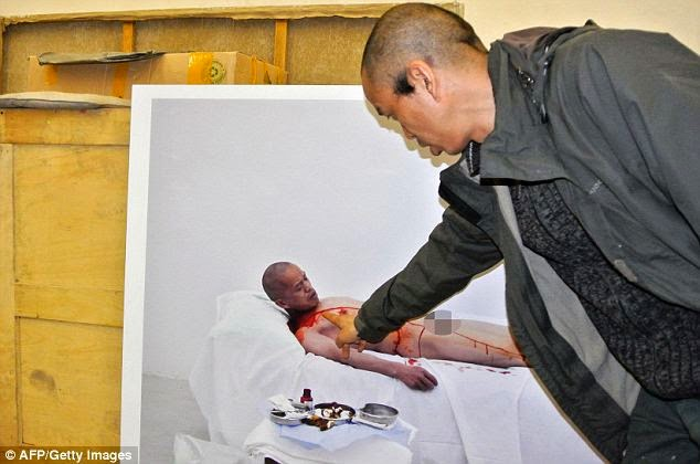 Chinese Artist Has Rib Removed WITHOUT Anaesthetic.. And Wears It as a Necklace