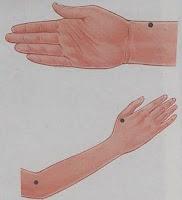 Titik Akupuntur di Tangan