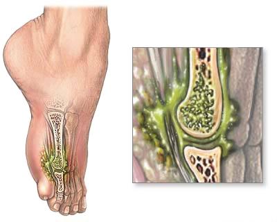 Informatii medicale despre osteomielita