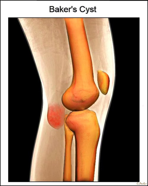 3-D Color Knee HD X-Ray Image showing a Baker's Cyst