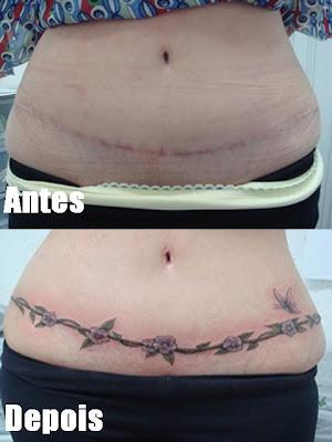 Cobertura De Tatuagem E De Cicatrizes P  S Operat  Rio