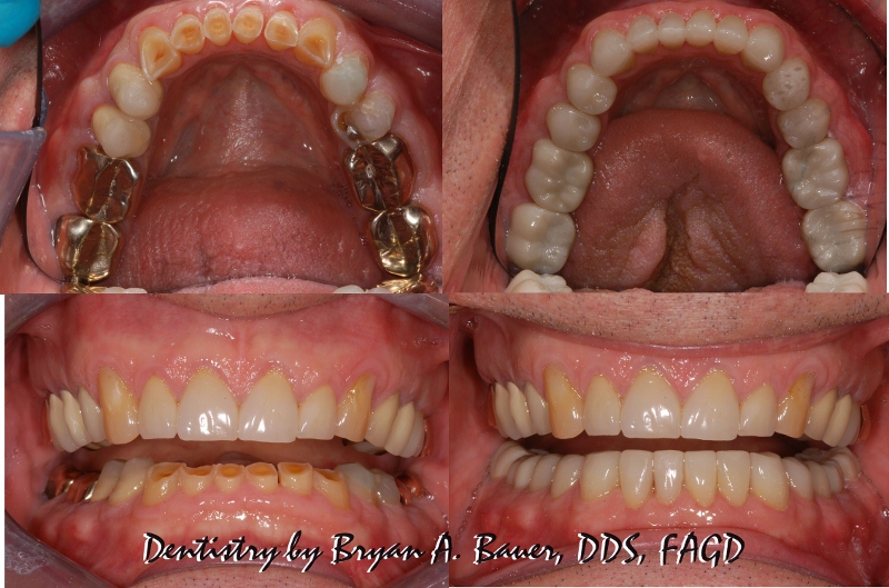 Dental Crown Steps And Costs In Wheaton Bauer Smiles