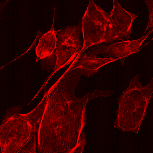 Red fluorescence captured under the Etaluma Lumascope 620 microscope.