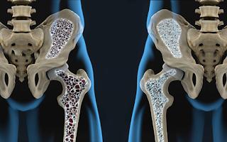 Por que a osteoporose se manifesta mais tarde em homens?