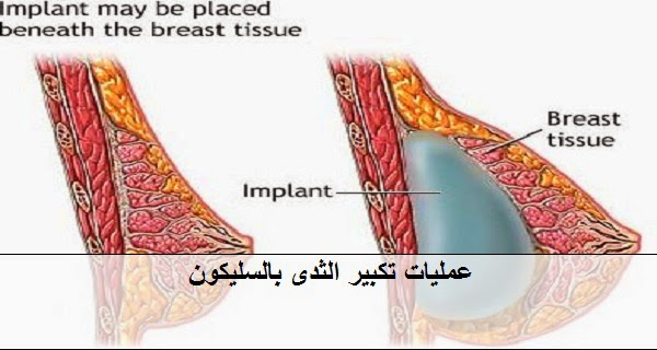 عملية تكبير الثدي باستخدام أكياس السليكون