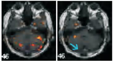 CI療法のファンクショナルMRI