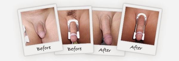 Alat Pro Extender Asli Alat Pelurus Dan Pembesar Penis Cepat