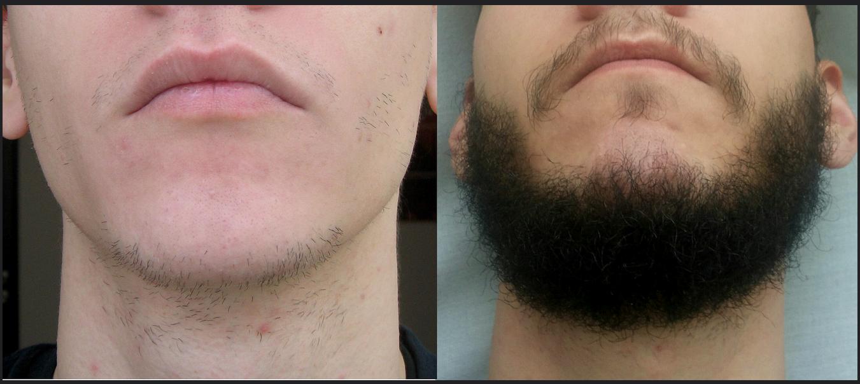 Выращивание бороды миноксидил 83