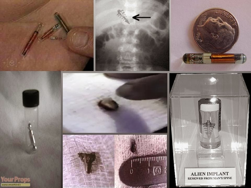 Alien Implants: A Closer Look Into One Aspect of Alien Abduction