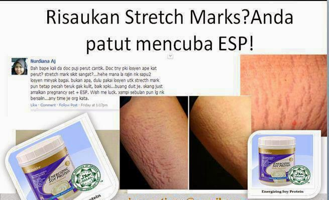 Cara Hilangkan Stretch Mark