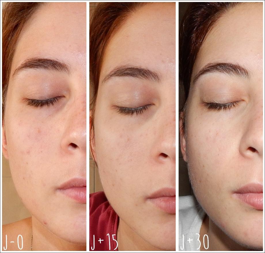bicarbonate de soude cicatrice acné avis