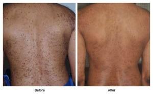 http://www.drrsroy.com/dermatitis/