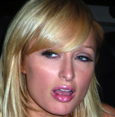 paris hilton showing off her herpes