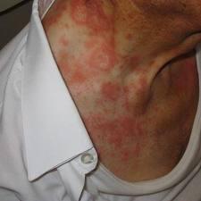 Frengi hastalığı ve belirtileri