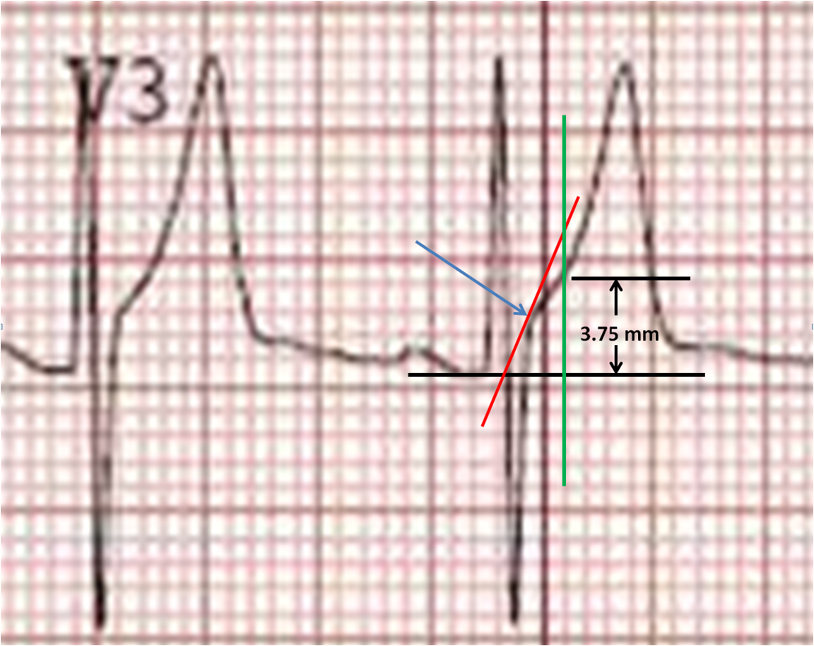 Dr Smiths ECG Blog How To Measure ST Elevation At - Elevation point