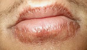 cara mengatasi bibir kering dan pecah-pecah secara alami
