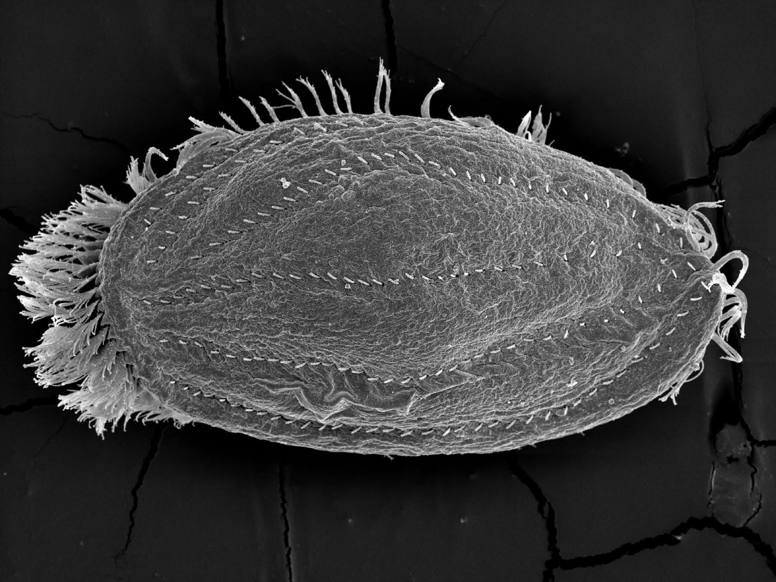 Los parásitos en la persona y el ajo