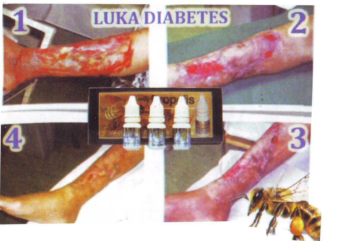 Herbal Bandung Propolis Golden Agen Mineral Tbc Flu Gold Macam Aneka Melia Propoli Mss