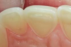 erosao_dentaria_google - Consumo Excessivo de Frutas Tropicais Pode Provocar Erosão Dental