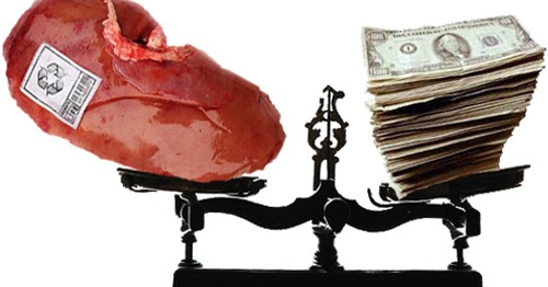 Research Presentation: The sale of Human Organs