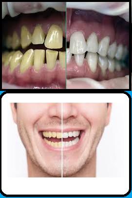 7 Tips Rahasia Cara Memutihkan Gigi Secara Alami Dan Sehat The