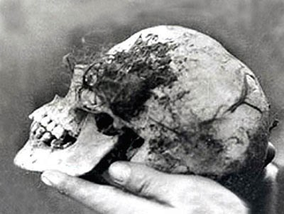 Skull of Bella found in the Wych Elm