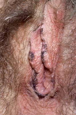 Alopetion a bambini atopic dermatite