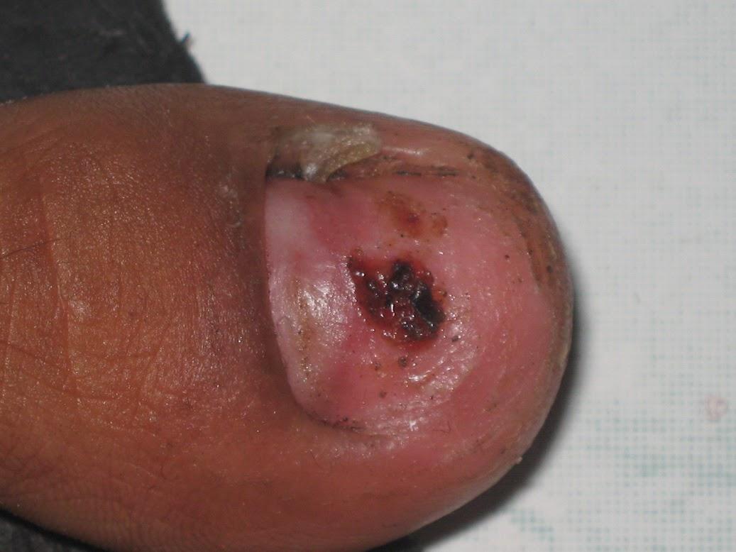 Mengobati Kuku Kaki Tangan Yang Terluka
