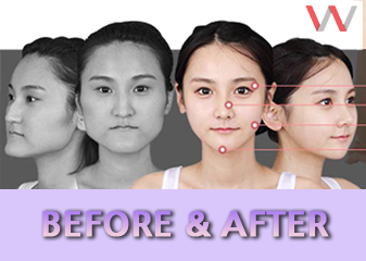 Korea Plastic Surgery Before And After
