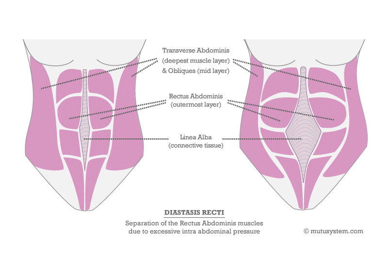 pubis diasthesis