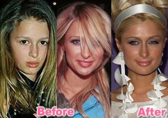 Paris hilton is rumored that she had a lot of plastic surgery