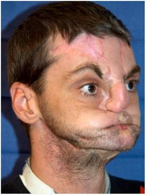 Richard Lee Norris Lelaki Yang Menjalani Pembedahan Pemindahan Muka Yang Menakjubkan