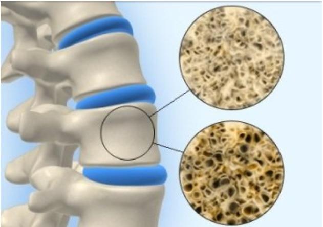 Universidad de Columbia descubren una cura para la osteoporosis