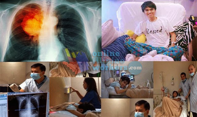Jam Sebastian is Dead What Causes His Lung Cancer?