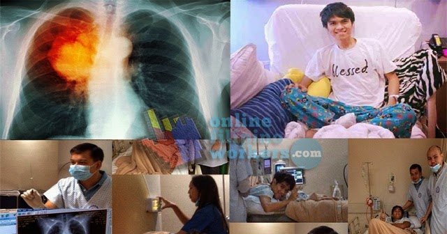 Jam Sebastian is Dead What Causes His Lung Cancer ...