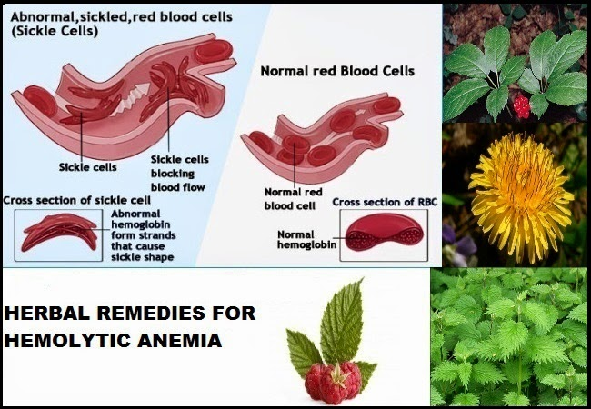 herbal remedies for hemolytic anemia | health n fairness, Skeleton