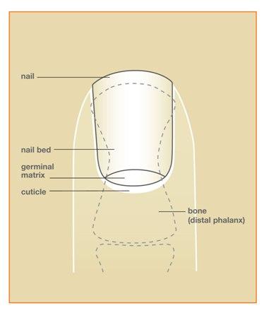 Centro de Mano de Massachusetts Occidental: Las lesiones de uñas Cama